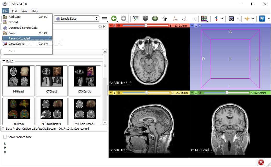 Download 3D Slicer 4.11.2 r29402 / 4.13.0 r29461 Preview