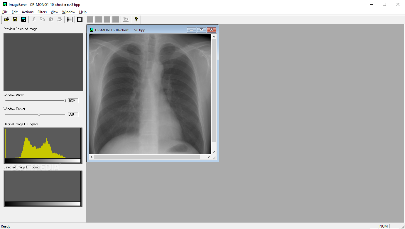 Download DICOM Viewer