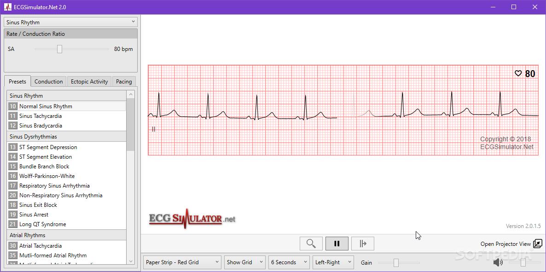 Download ECG Simulator 2 0 1 5