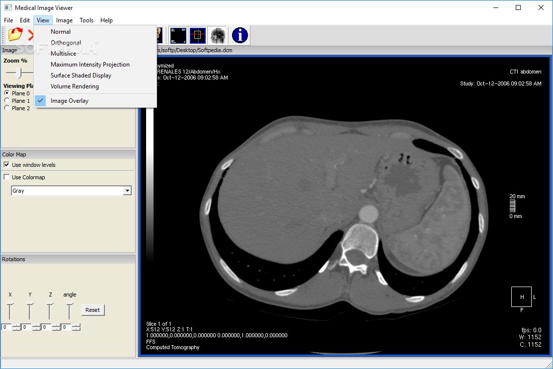Medical image viewer download