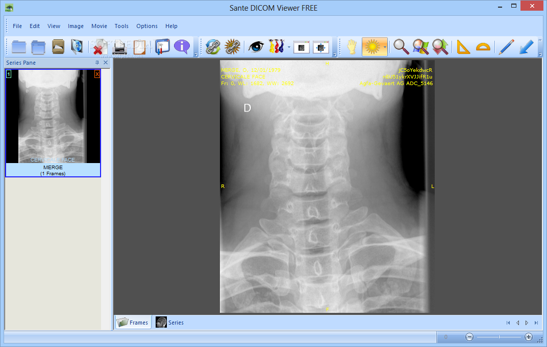 Download Sante DICOM Viewer FREE 6 0