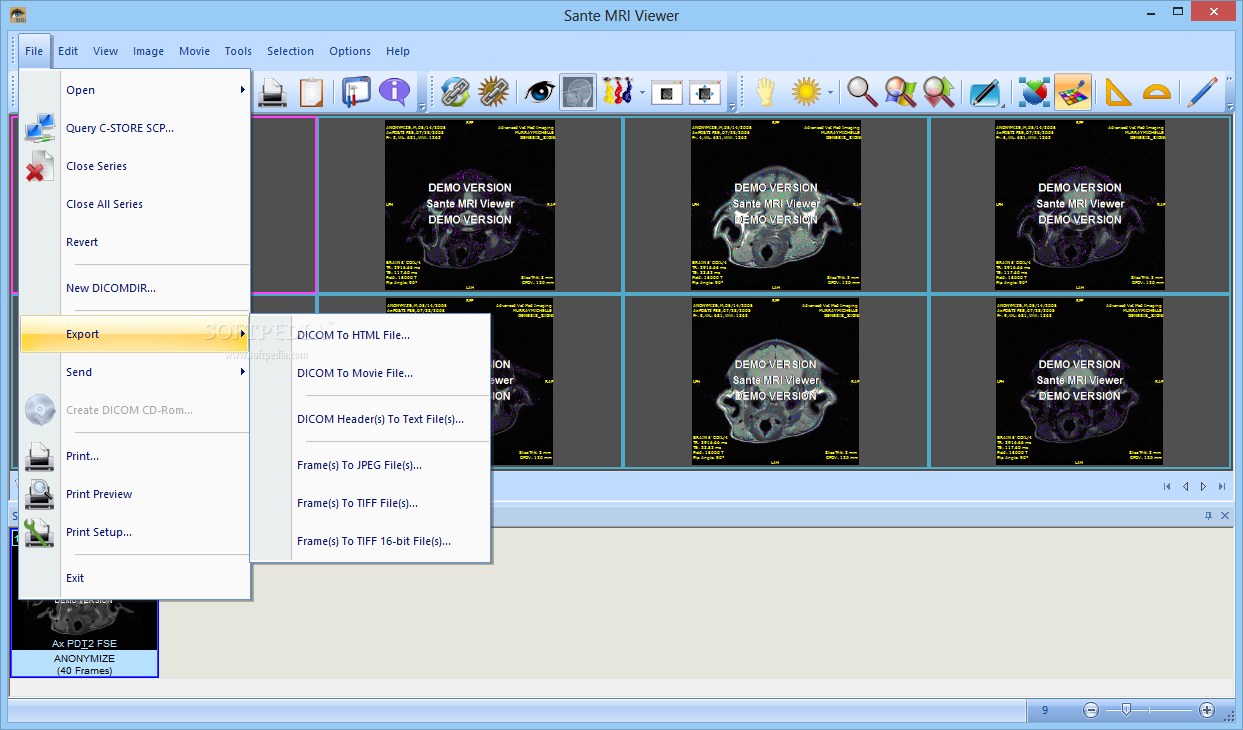 Download Sante MRI Viewer 3 1