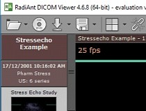 Download RadiAnt DICOM Viewer 5 0 1